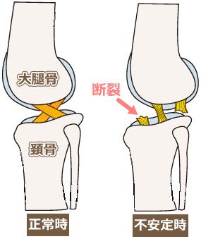 前十字靭帯断裂
