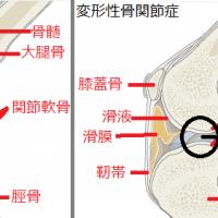 変形性骨関節症DJD