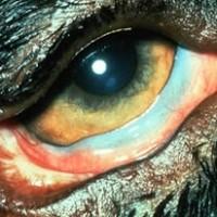 眼瞼外反症