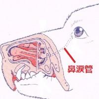 鼻涙管狭窄、鼻涙管閉塞