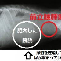 前立腺腫瘍