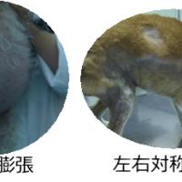 クッシング症候群、副腎皮質機能亢進症