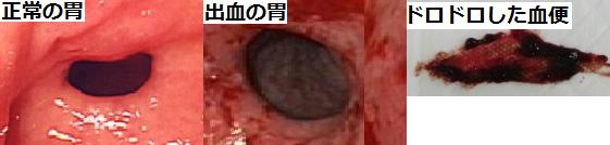 出血性胃腸炎