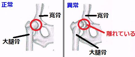 股関節形成不全