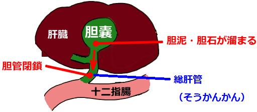 胆嚢炎,胆泥症,胆石症