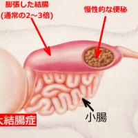 巨大結腸症