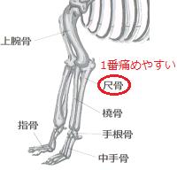 汎骨炎(はんこつえん)