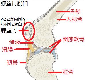 膝蓋骨脱臼(しつがいこつだっきゅう)