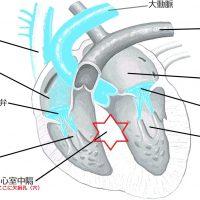 心室中隔欠損症